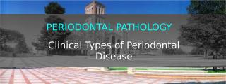 gingivitis 1.pptx